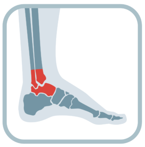 Ankle Joint Pain Relief