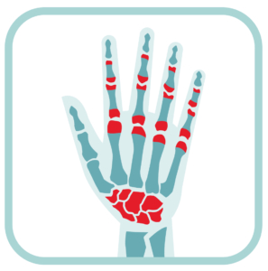Wrist Pain Joint Relief Treatment