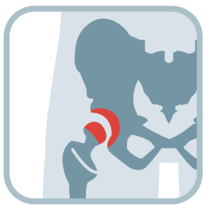 Heal Hip Joint Pain