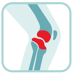 Knee Joint Treatment Relief